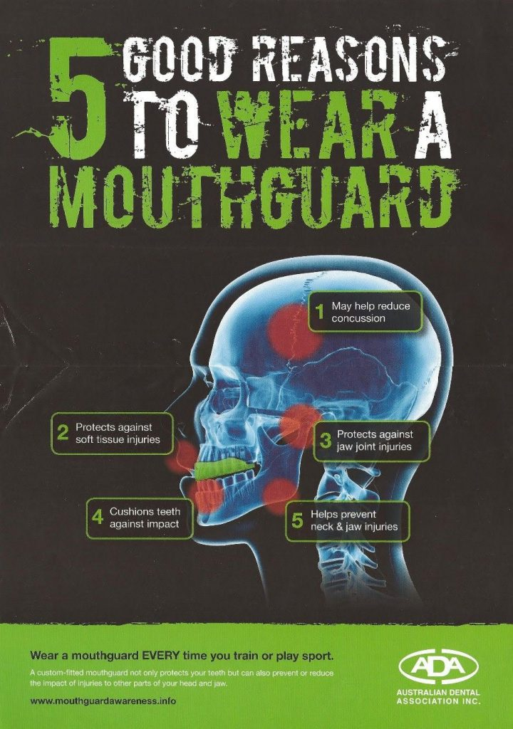 Mouthguard Alexandra Yea Murrindindi