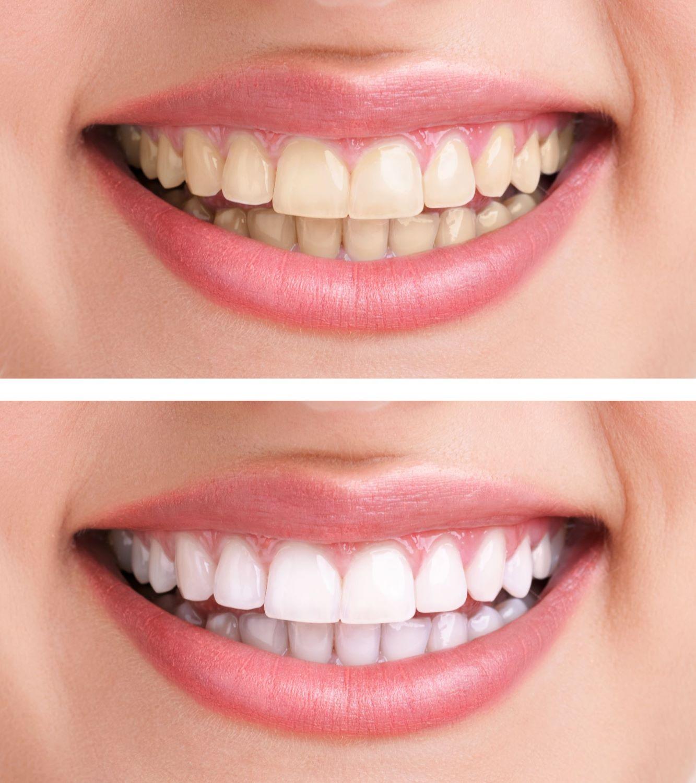 teeth whitening alexandra